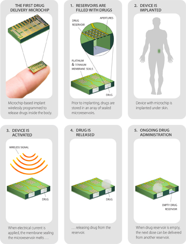 Funded by Bill Gates, this remote-controlled contraceptive chip could be available in 2018