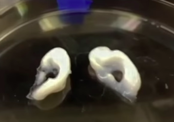 Photo via YouTube/BioBots