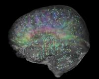 Gene expression in human brain