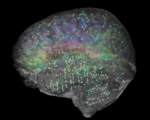 Gene expression in human brain