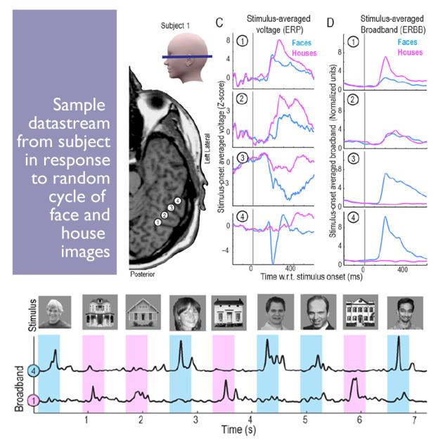 Datastream of brain signals