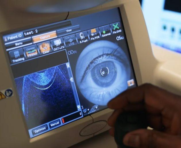 Google Deepmind eye image analysis for AI