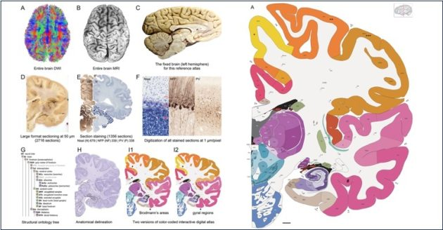 Allen Hum;an Brain Reference Atlas