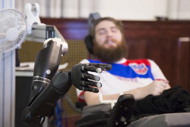 Nathan Copeland and robotic hand