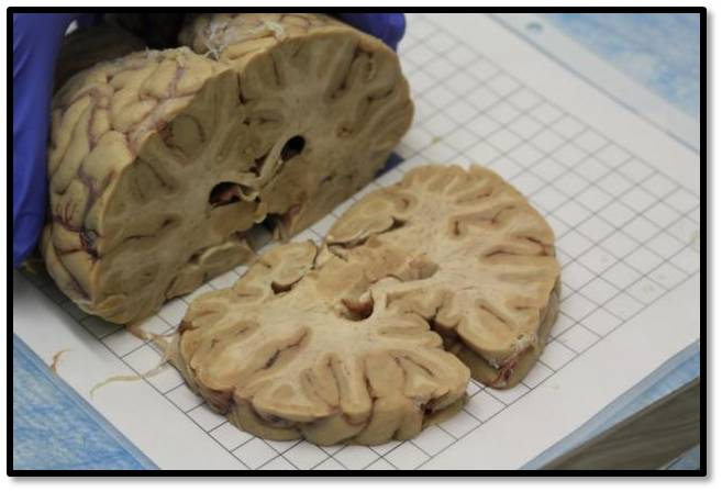A human brain slabbing. Photo courtesy of the Allen Institute for Brain Science.