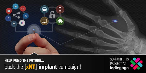 Crowdfunding campaign will embed an NFC chip in your hand