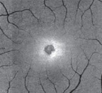 Retinal damage