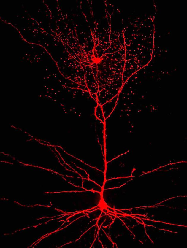 Rosehip and pyramidal neurons